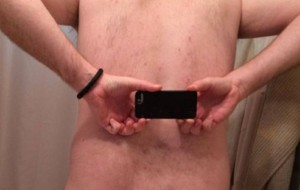 Man with no butt crack opens up about his bizarre - and painful - condition